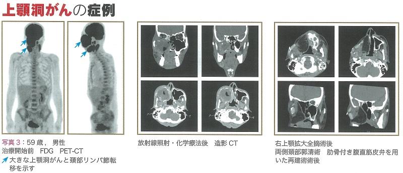 癌 症状 洞 上顎 【医師監修】上顎癌はどこに生じる癌なの? 症状や治療法は?