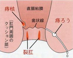 ろう 後 痔 手術 痔の手術後 浸出液のための生理用ナプキンの使用終了