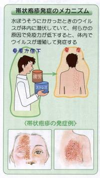 発疹 カポジ 治療 様 水痘 症