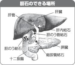 総 胆管 結石